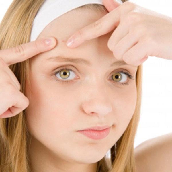 Υποθυρεοειδισμός & Ακμή + 6 βήματα για να καθαρίσετε το δέρμα σας