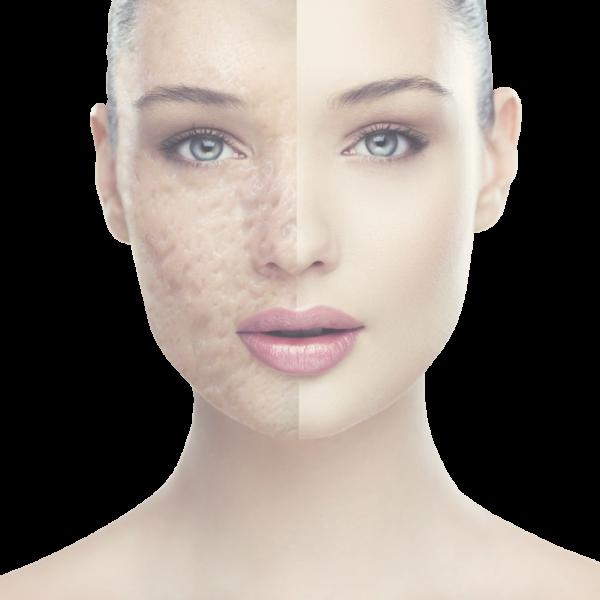 Ανακαλύψτε τι προκαλεί ορμονική ακμή και πώς μπορείτε να το αποτρέψετε φυσικά